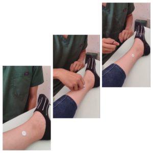 足にお灸をする写真